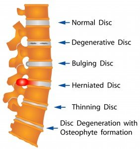 Back Pain Spine Stock