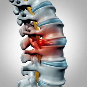 herniated disc - pinched nerve
