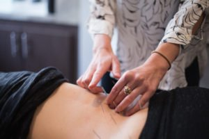 Acupuncture: The Healing Method Encompassing Nearly Everything from Sports Injuries to the Flu